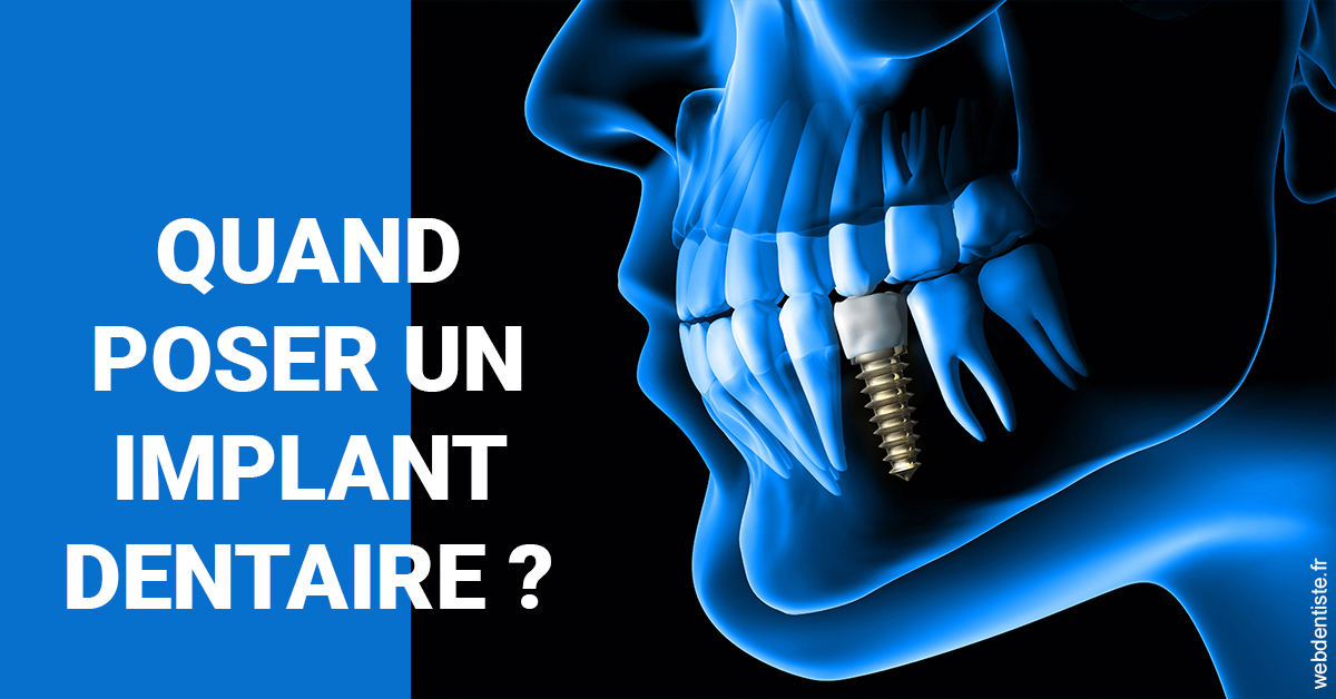 https://dr-guedj-amsellem-laure.chirurgiens-dentistes.fr/Les implants 1